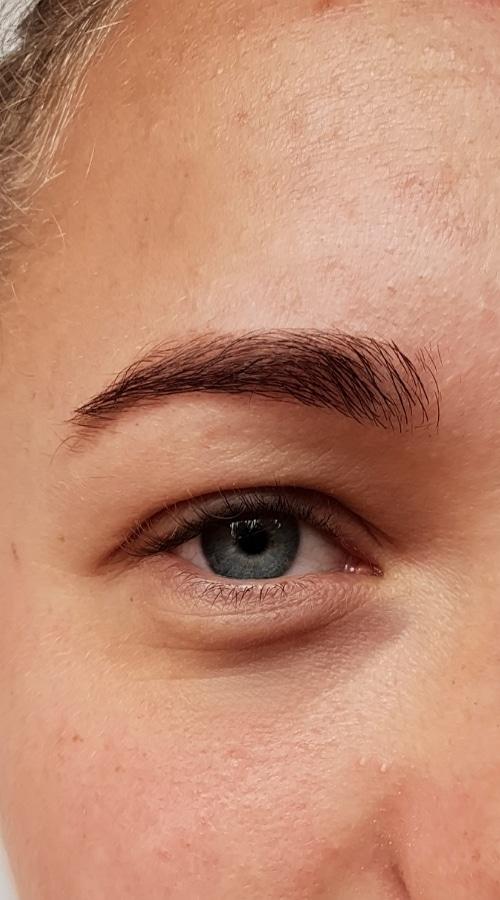 Antes de presoterapia ocular
